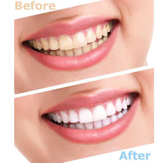 Tẩy trắng răng công nghệ đèn Plasma cao cấp