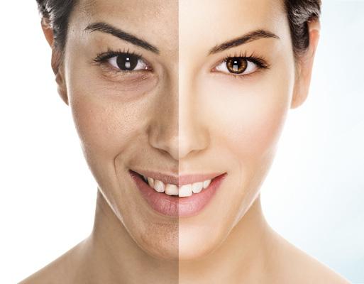 Trẻ hóa làn da trắng mịn - Derma Laser Clinics