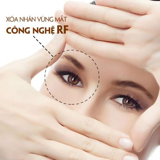Xóa nhăn, trị thâm, nâng cơ vùng mắt CN ION RF