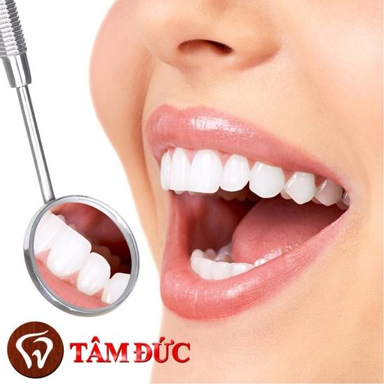 Làm răng sứ Titan cao cấp - Bảo hành 2 năm Nha khoa Tâm Đức