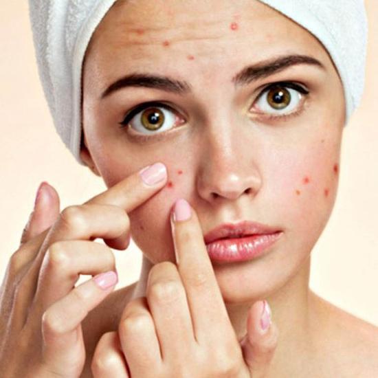 Điều trị sạch mụn không đau rát, không tái phát Ngọc Ánh Beauty & Spa