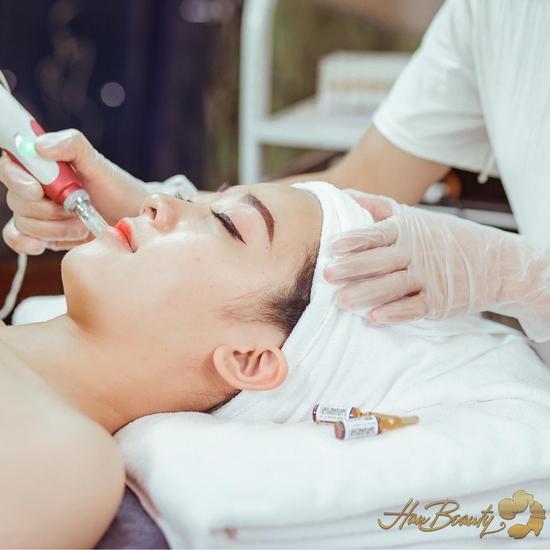 Vi kim Công nghệ Baby Smooth Peeling cao cấp Viện thẩm mỹ và đào tạo Han Beauty