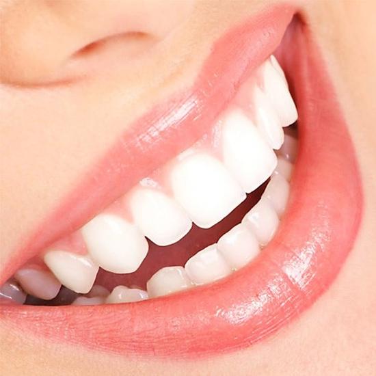 Lấy cao răng siêu âm + Tẩy trắng răng CN cao tại Nha khoa Thu Lan