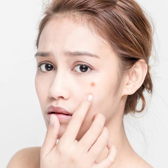 Trị mụn tận gốc, dứt điểm không tái phát, cam kết & bảo hành da sau điều trị tại Minh Tue's Beauty