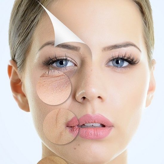 Nâng cơ trẻ hóa da mặt công nghệ RF tại Viện Thẩm mỹ Hải Chi Beauty & Clinic