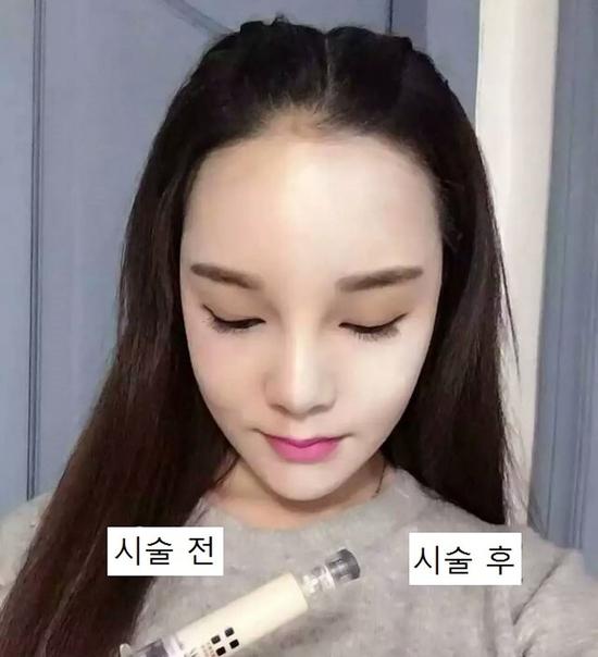 Cấy phấn NanoWhite SkinCC Korean trắng mịn cực HOT Thủy Quỳnh Spa