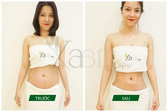 Siêu giảm béo bí quyết cổ truyền Trung Hoa Xaam Spa
