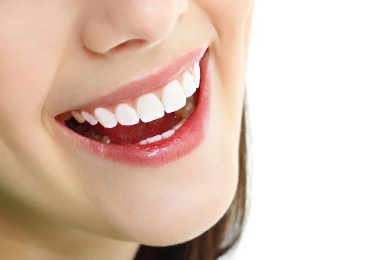 Tẩy trắng răng Laser Whiterning tại nhà - Nha Khoa Everest