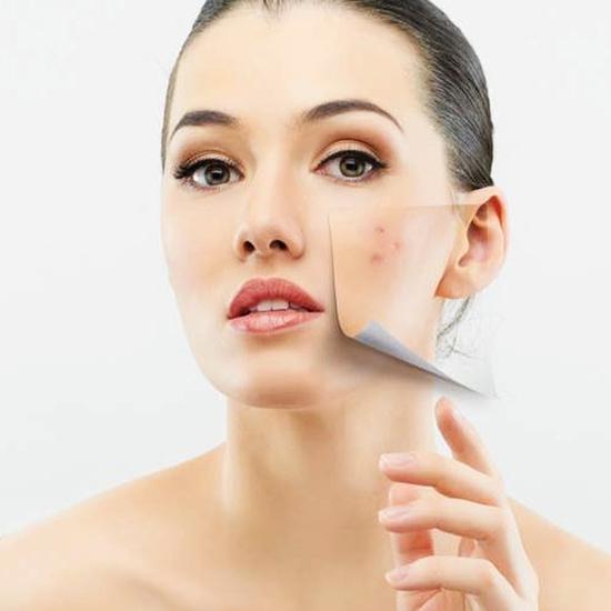 Trị sẹo rỗ đông y độc quyền tại Jennes Beauty & Spa - cam kết hiệu quả sau 1 buổi điều trị