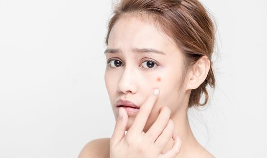 Sạch mụn không tì vết cùng Diệu Hương Beauty Spa