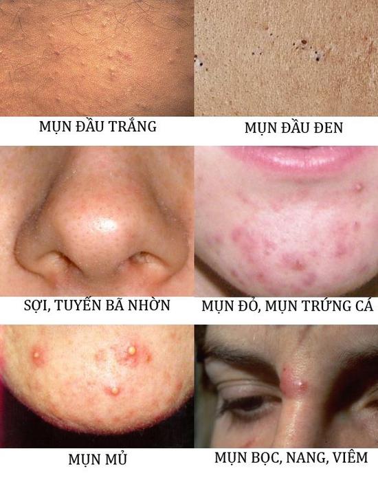 Trị Mụn chuyên sâu, thải độc khử chì hiệu quả ngay lần đầu tiên sử dụng tại Beauty Kalia