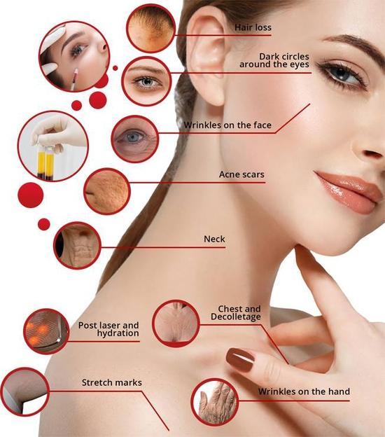 Tái tạọ da, trẻ hóa, xóa nhăn, làm đầy sẹo lõm... với tế bào gốc tự thân tại Allure Beauty