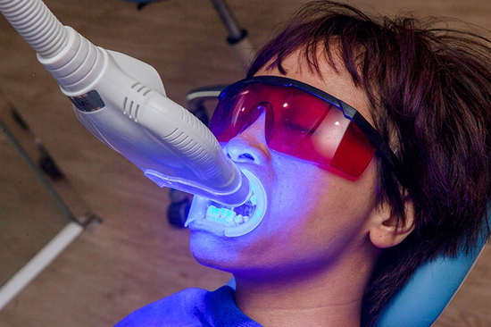 Tẩy trắng răng Whitening Max Plus, Không Ê Buốt, Bảo vệ Nướu, Men răng tại Nha Khoa Thẩm Mỹ Sunshine