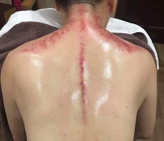 Trị liệu chuyên sâu đau mỏi cổ/vai/gáy - đánh tan mệt mỏi sau buổi đầu tiên tại Dưỡng tâm MV Beauty