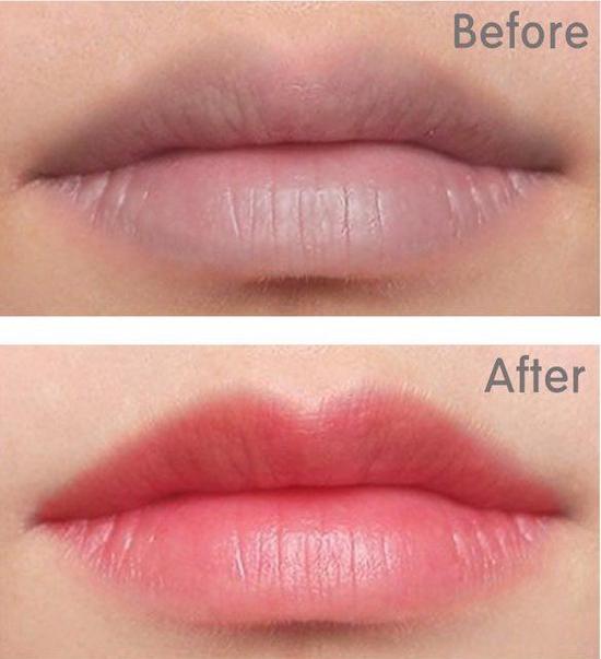 Phun môi collagen căng mọng + tặng 1 lần nối mi hoặc uốn mi tại Lilian Spa